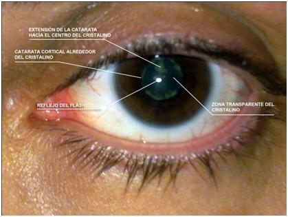 Mi operaci n de cataratas la cosa est mal - Como deshacer un mal de ojo ...